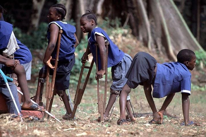 polio vaccine essay